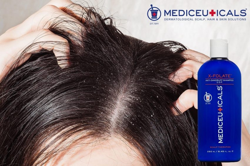 Hair2 - Seborroïsch eczeem behandelen