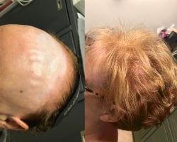 Hair2 - Haarwerk - Anoniem ervaring