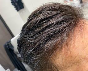 Hair2 - Haarstuk mannen
