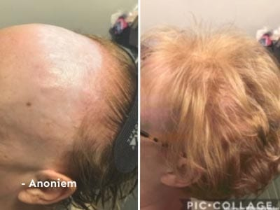 Hair2 - Anonieme ervaring